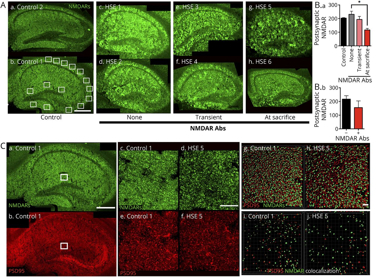 Mouse model of anti-NMDA receptor post–herpes simplex
