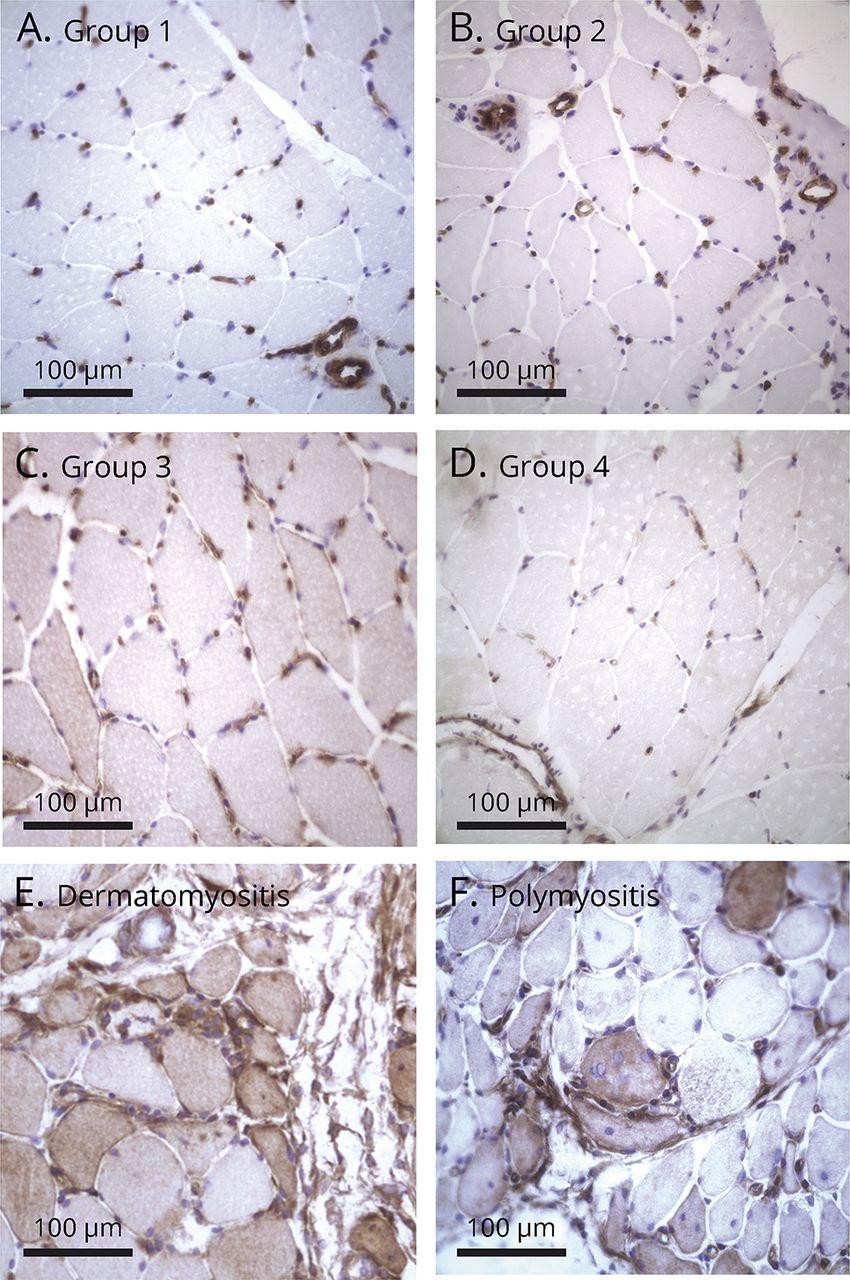 Myalgia with the presence of pathologic EMG correlates with