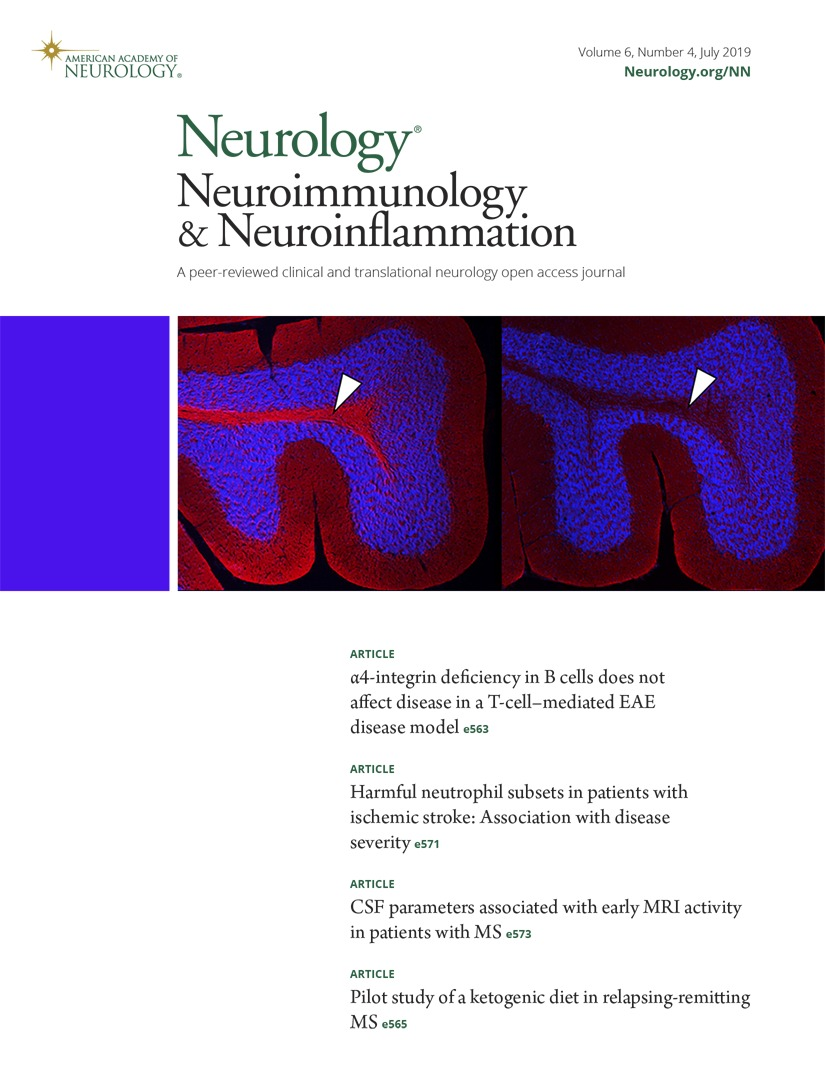 Harmful neutrophil subsets in patients with ischemic stroke